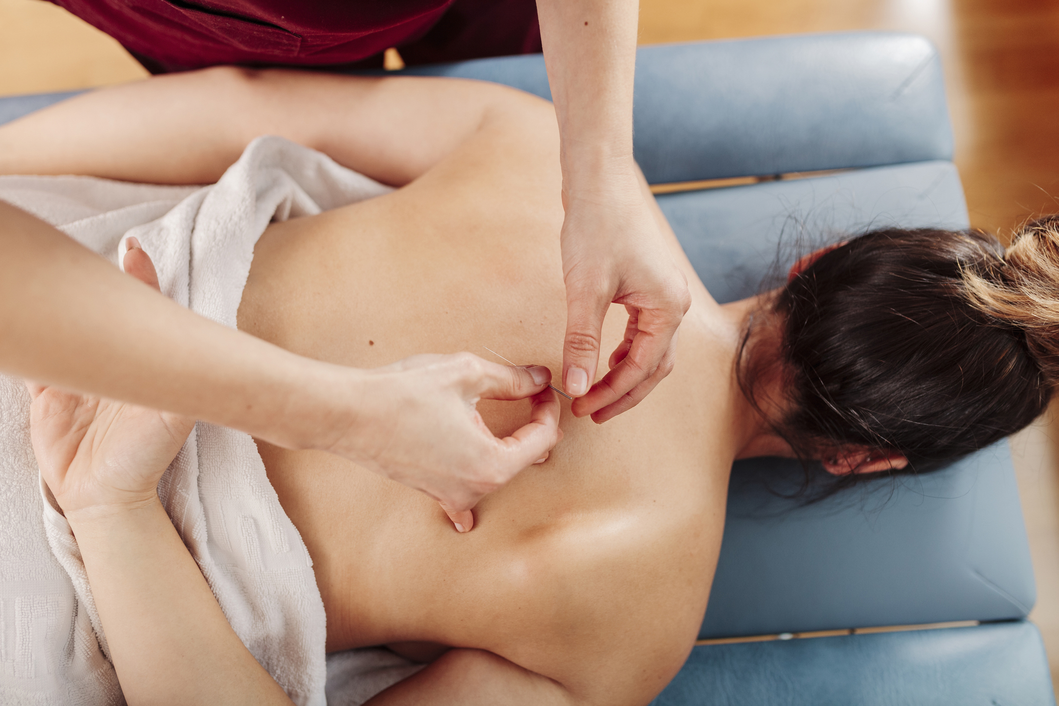 Physiotherapist applying dry needling therapy on woman back
