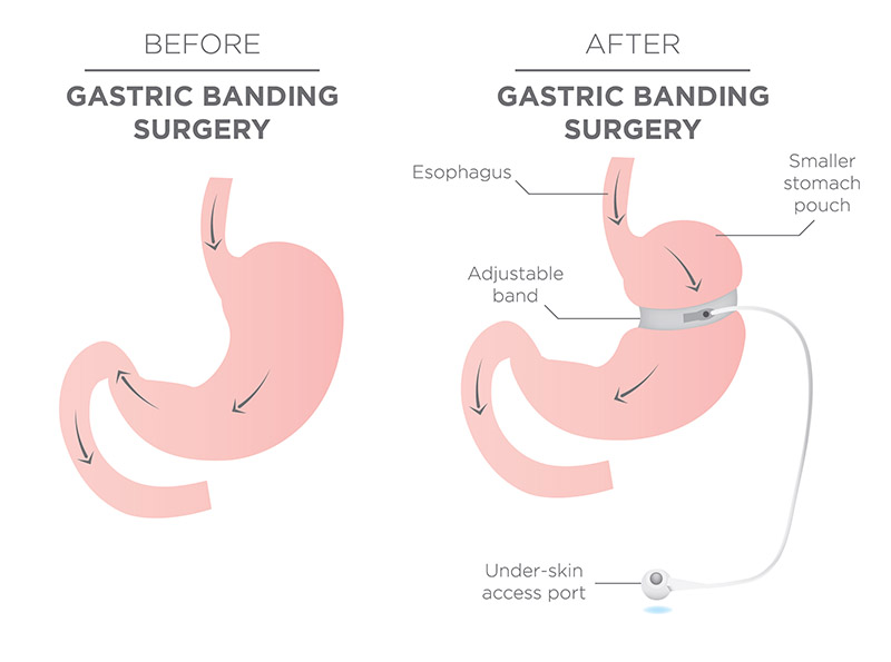 Gastric Banding Surgery Diagram